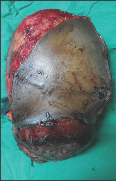 Figure 4: Excised tumor which weighed 3 kg